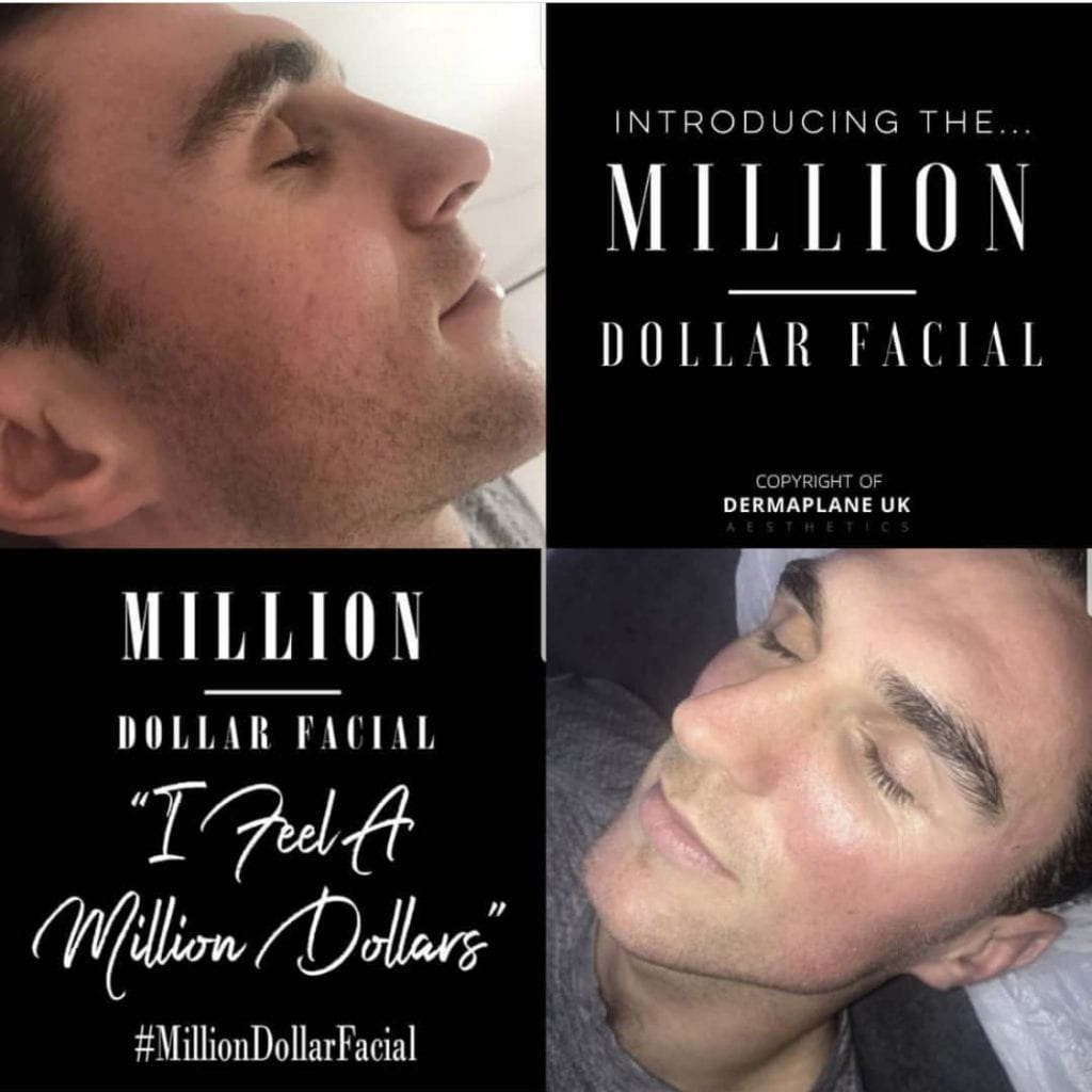 Million Dollar Facial Lavish Body Clinic